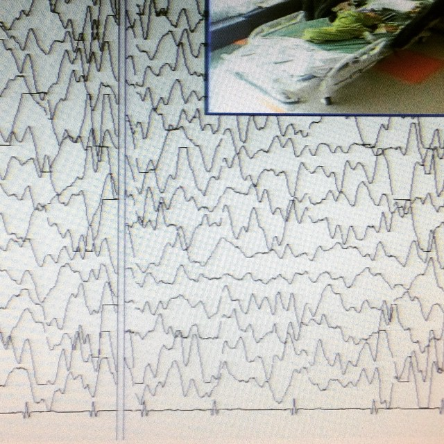 dreaming eeg epilepsy seizure how far we have come